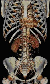 CT Angiography Figure 1